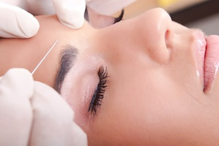 Botox - Toxina Botulínica