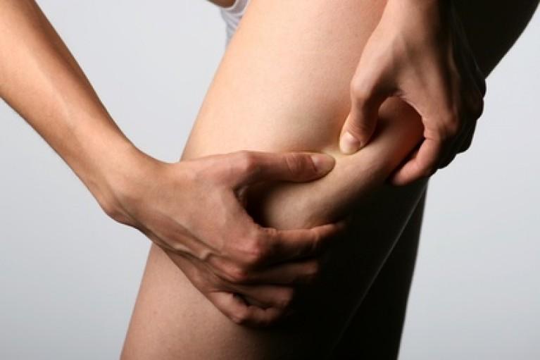 Celulitis y Liposucción