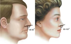 Angulo nasolabial. Rinoplastia en hombre