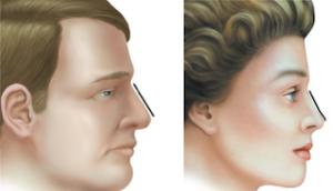 Dorso nasal, diferencias hombre-mujer