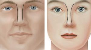 Frente Nasal. Rinoplastia en hombre