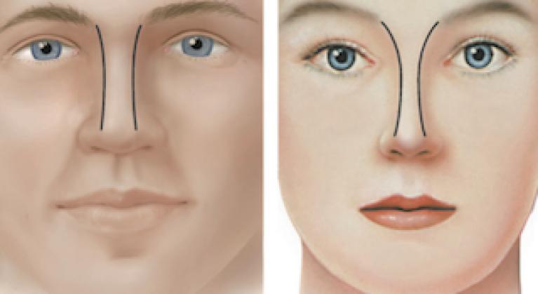 Frente Nasal Hombre vs. Mujer
