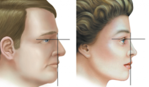 Longitud nasal. Hombre vs. mujer