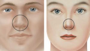 Punta nasal. Diferencia hombre vs. mujer