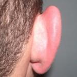 Otoplastia para orejas despegadas
