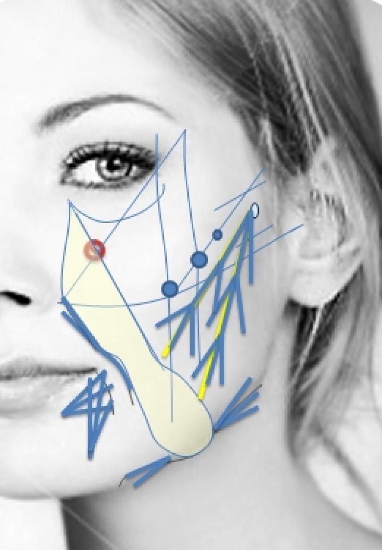 Reparación de volumen facial con Radiesse
