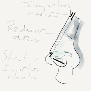 Rinomodelación vs. Rinoplastia