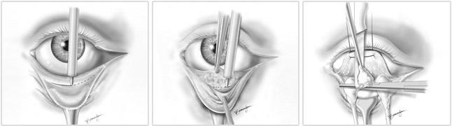 Blefaroplastia transconjuntival