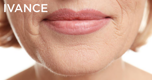Eliminar arrugas labio superior codigo de barras peeling de fenol IVANCE cirugia estetica Gipuzkoa Bizkaia Araba Pais Vasco
